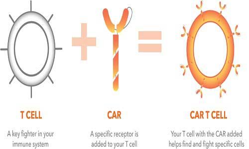 ویرایش ژنی می تواند سمیت درمان با CAR T cell  را در AML کاهش دهد