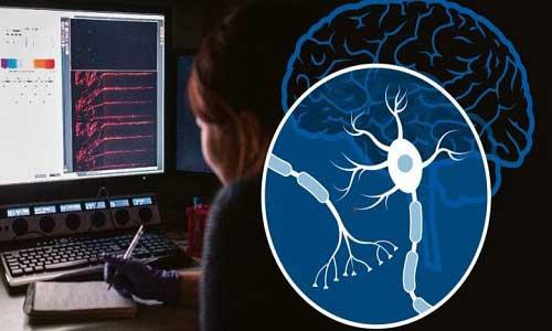 ژن پیشگیری از بیماری های مغزی