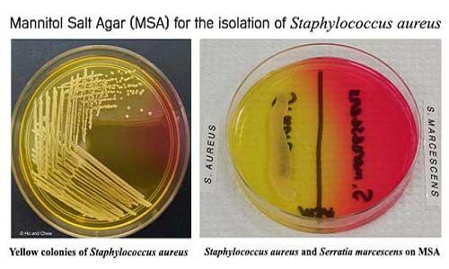 آزمون مانیتول-سالت-آگار MSA برای جداسازی استافیلوکوکوس اورئوس
